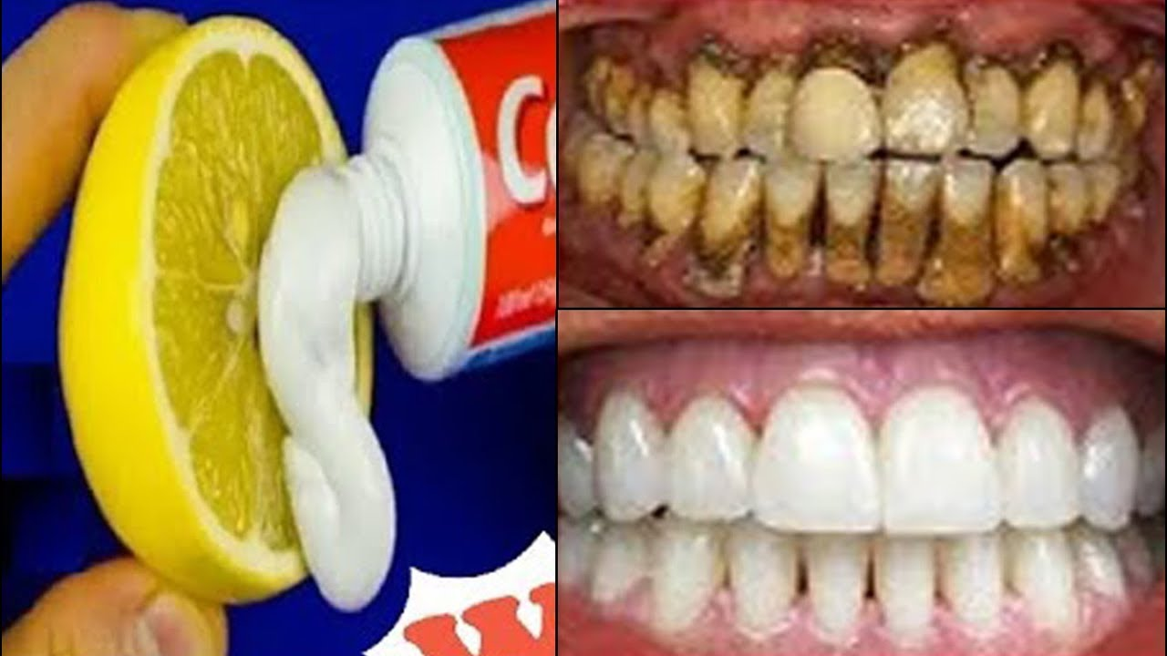Magical Teeth Whitening Remedy Get Whiten Teeth At Home In One