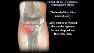 Pulled Elbow In Children, Nursemaid