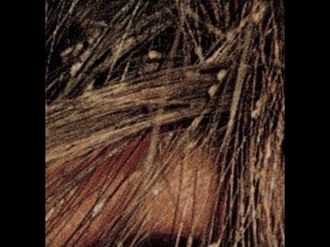 Las vitaminas para los cabellos de la caída frotar en la piel