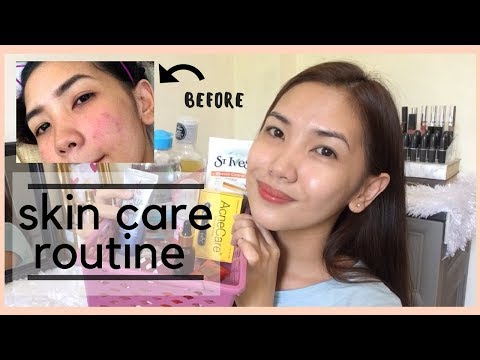 hqdefault - Best Anti-acne Products In The Philippines