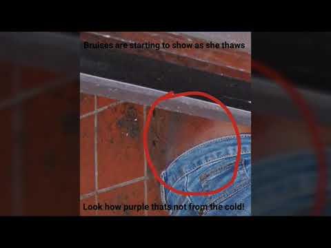 Kenneka Jenkins Crime Photos: Close ups of injuries