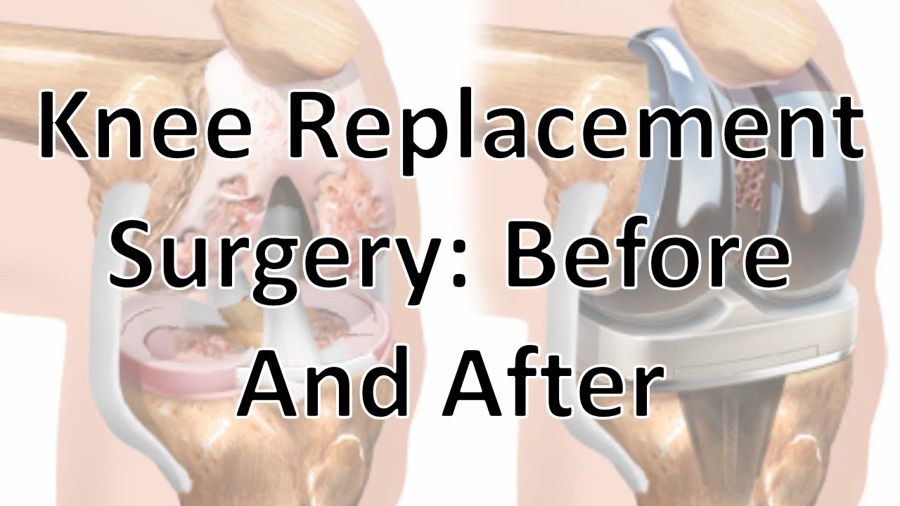 Knee Replacement Surgery Before And After Youtube