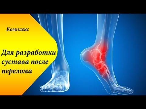Как восстановить ногу после перелома голеностопа