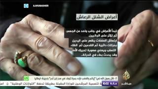 بالفيديو: مشاهير أصيبوا بمرض الشلل الرعاش