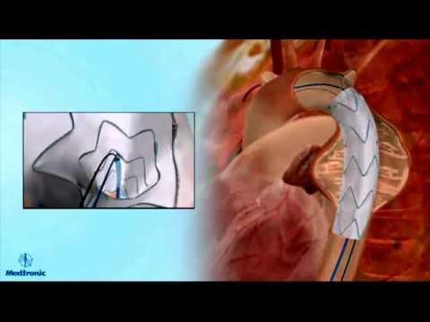 Эндопротезирование аневризмы грудной аорты