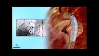 Эндопротезирование аневризмы грудной аорты(, 2012-04-08T23:40:35.000Z)