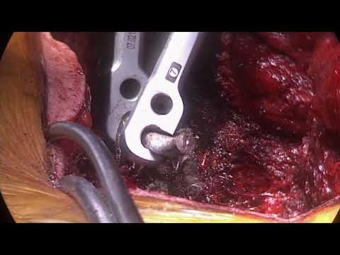 Adult Revision Surgery Of Prior Hook-and-rod Wire Instrumentation For Idiopathic Scoliosis