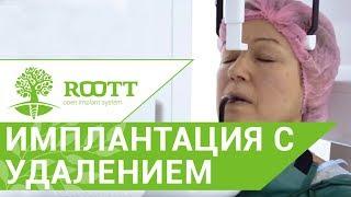 Имплантация видео. 🔬 Видео удаление зуба с кариесом и классическая имплантация. ROOTT