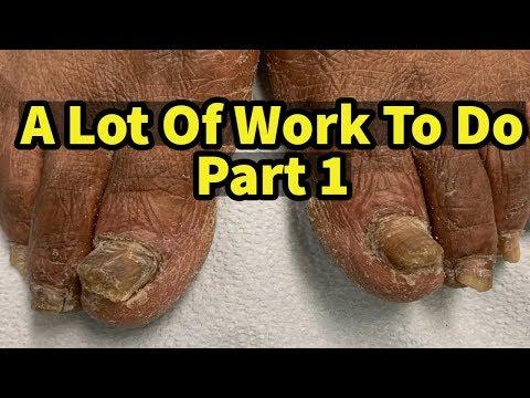 발톱무좀! 겹겹이 가로줄 속에있는 무좀의 실체! athlete's foot / tinea pedis / onychomycosis - 레푸스 남양주호평점 Refuss from YouTube · Duration:  10 minutes 3 seconds