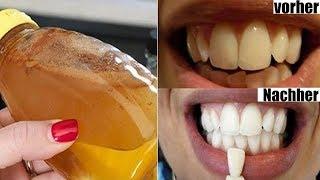 Die schnellsten und sichersten Methoden um Zähne natürlich aufzuhellen!