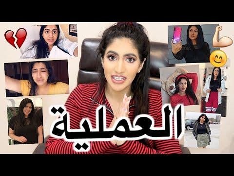 العملية الي غيرت حياتي بالتفاصيل - Noor Stars