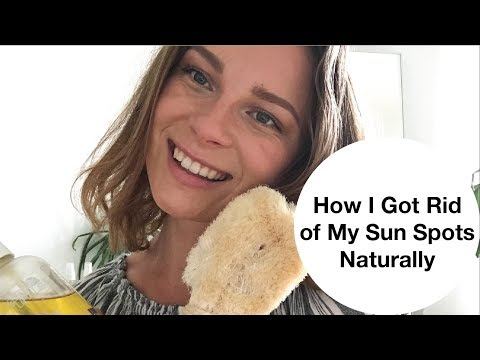 How I Got Rid of My Sun Spots, Naturally  |  5 Top Tips To Get Rid of Sun Spots