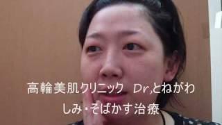 高輪美肌研究所 Drとねがわ(医学博士 利根川均) しみそばかす治療体験...