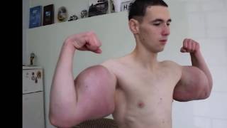 Synthol Kid gets his arms drained thumbnail