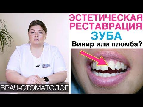 Реставрация зубов с помощью материала пломбы и керамического винира. Сколы, сломанный зуб.