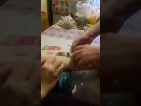 Внутривенная инъекция глюконат кальция  медбрату 14 лет