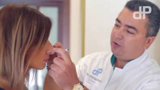 Ринопластика Кристины - коррекция кончика носа, удаление горбинки