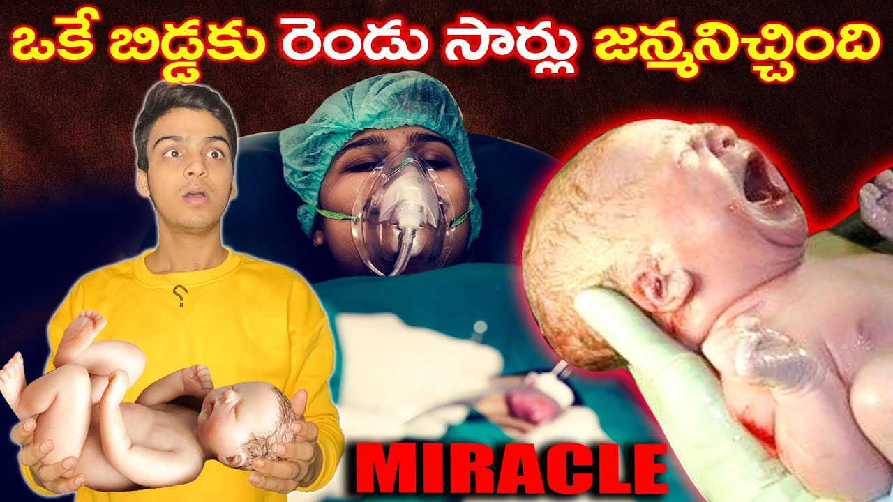 BABY BORN TWICE - MEDICAL MIRACLE & TOP 10 INTERESTING FACTS IN TELUGU | TELUGU FACTS DYK EP-95