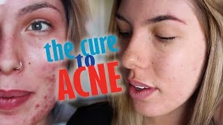 THE CURE TO ACNE! | Makenna Smith