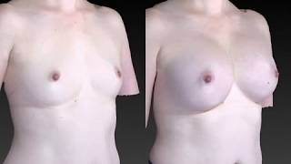 Breast Enhancement 3D Before and After-54