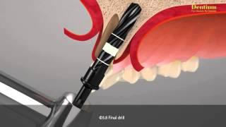 Implante imediato após fratura dente/raiz