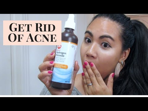 How to treat your acne using hydrogen peroxide?