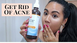 hqdefault - What Strength Hydrogen Peroxide For Acne