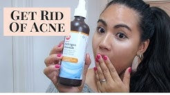 hqdefault - Does Hydrogen Peroxide Help Cure Acne