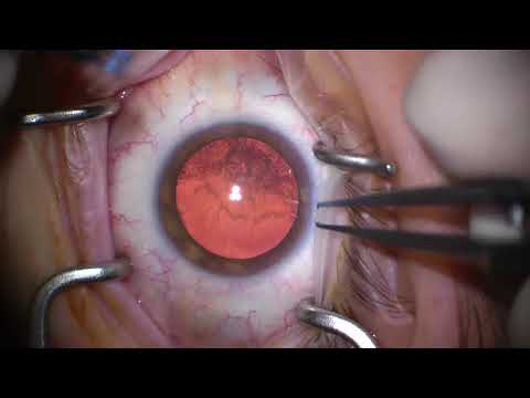 My Cataract Surgery
