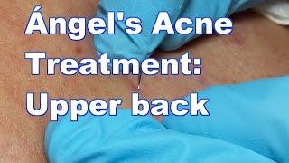 Ángel's Acne Treatment:  Upper Back