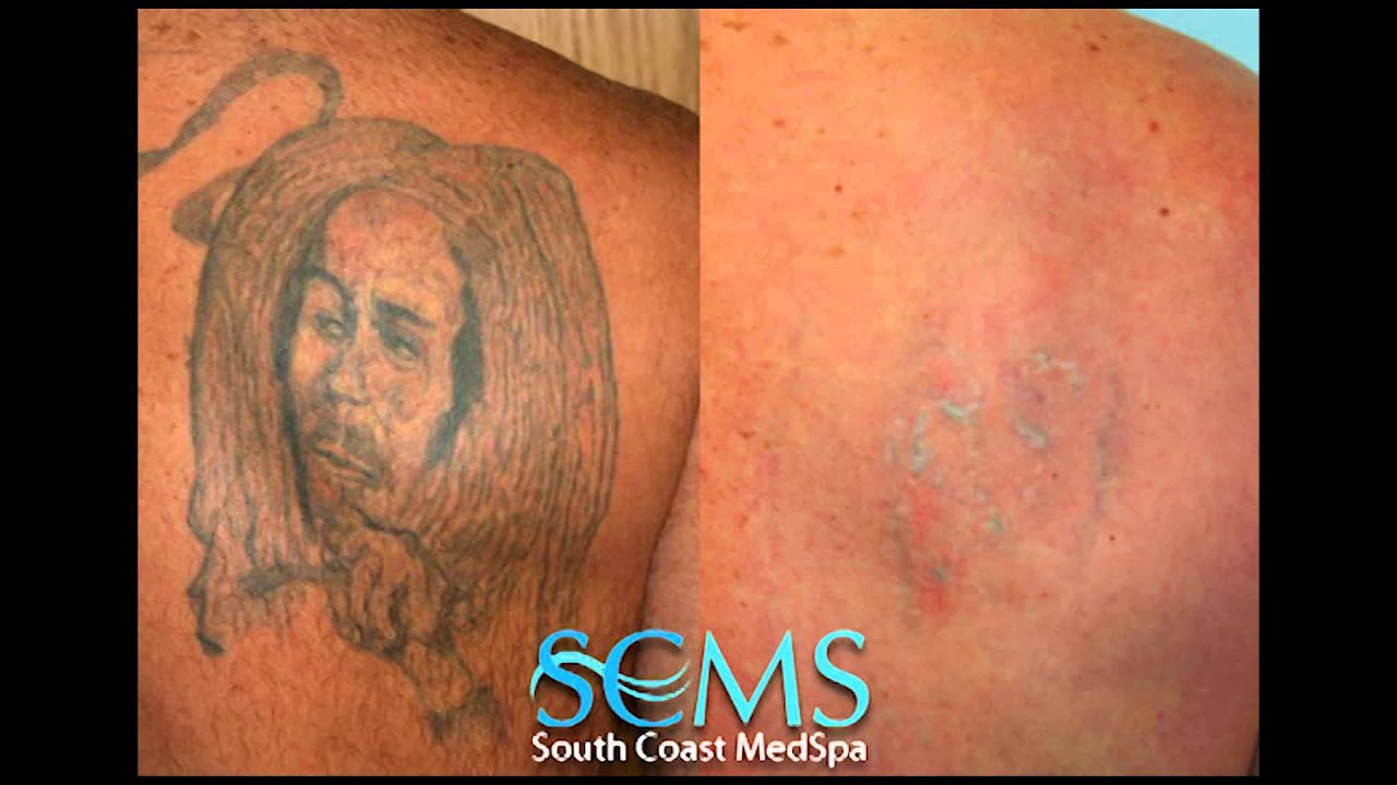 Laser Tattoo Removal Orange County Before/After - YouTube
