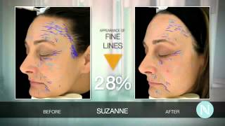 MUST WATCH | Best Natural Anti Aging Treatment Cream On The Market Now!!!
