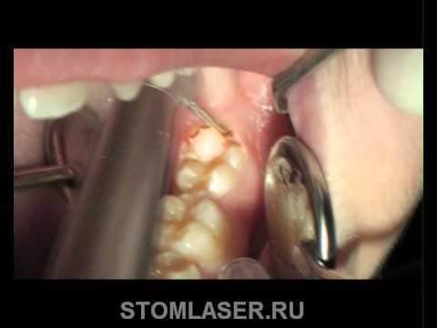 Стоматологические лазеры - иссечение капюшона