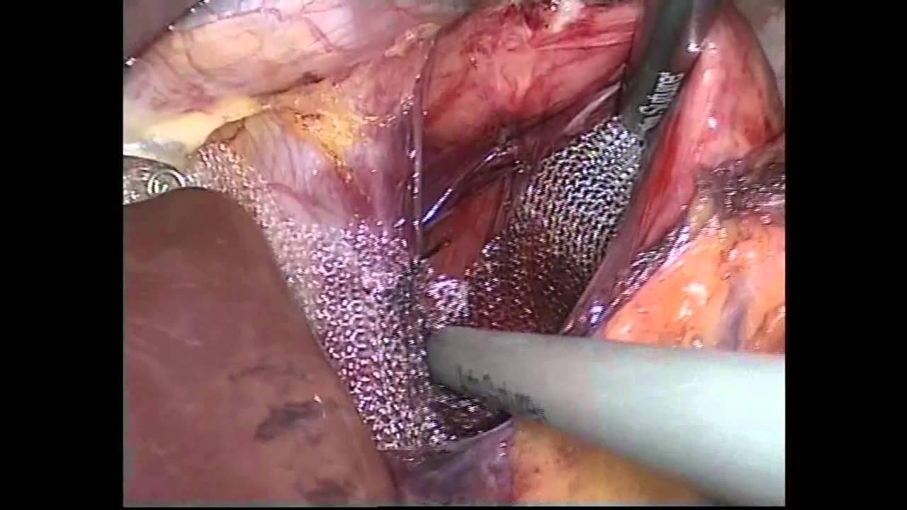 Laparatomi Nedir Laparatomi Ameliyatı Nasıl Yapılır