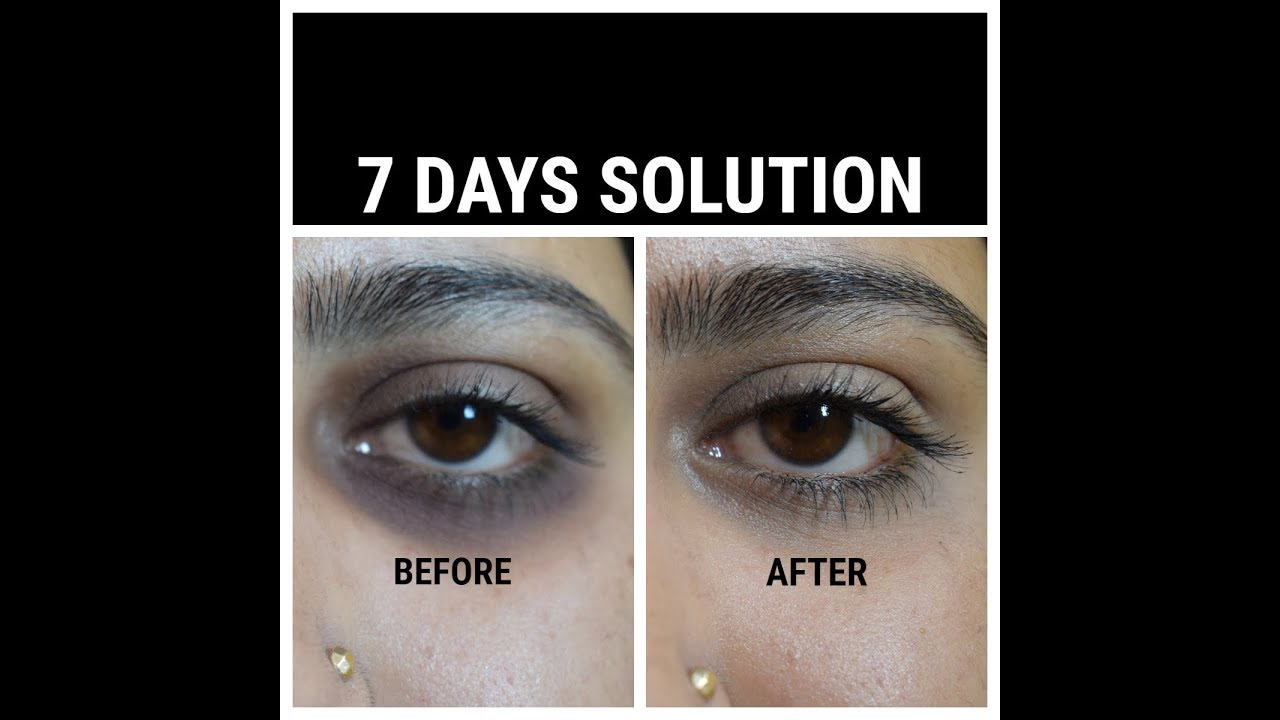How To Remove Under Eye Dark Circles Naturally In 7 Days ...