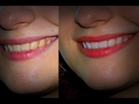 Как отбелить зубы в Фотошопе и убрать синяки под глазами
