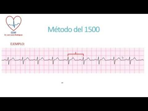 Calculo de la frecuencia cardíaca en un ECG