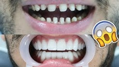 ME GETTING VENEERS  -  COST? I LOST ALL MY TEETH??  IS IT WORTH IT?