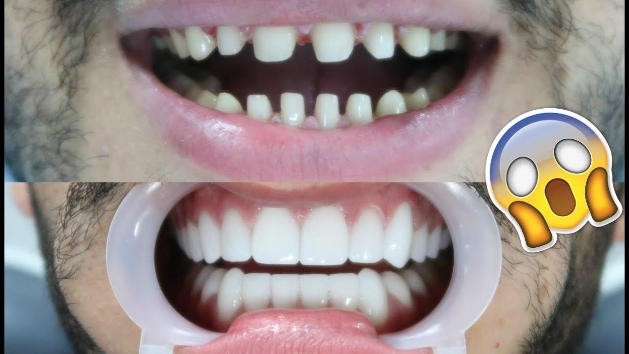 Me Getting Veneers Cost I Lost All My Teeth Is It Worth It Dental Centre Turkey Youtube