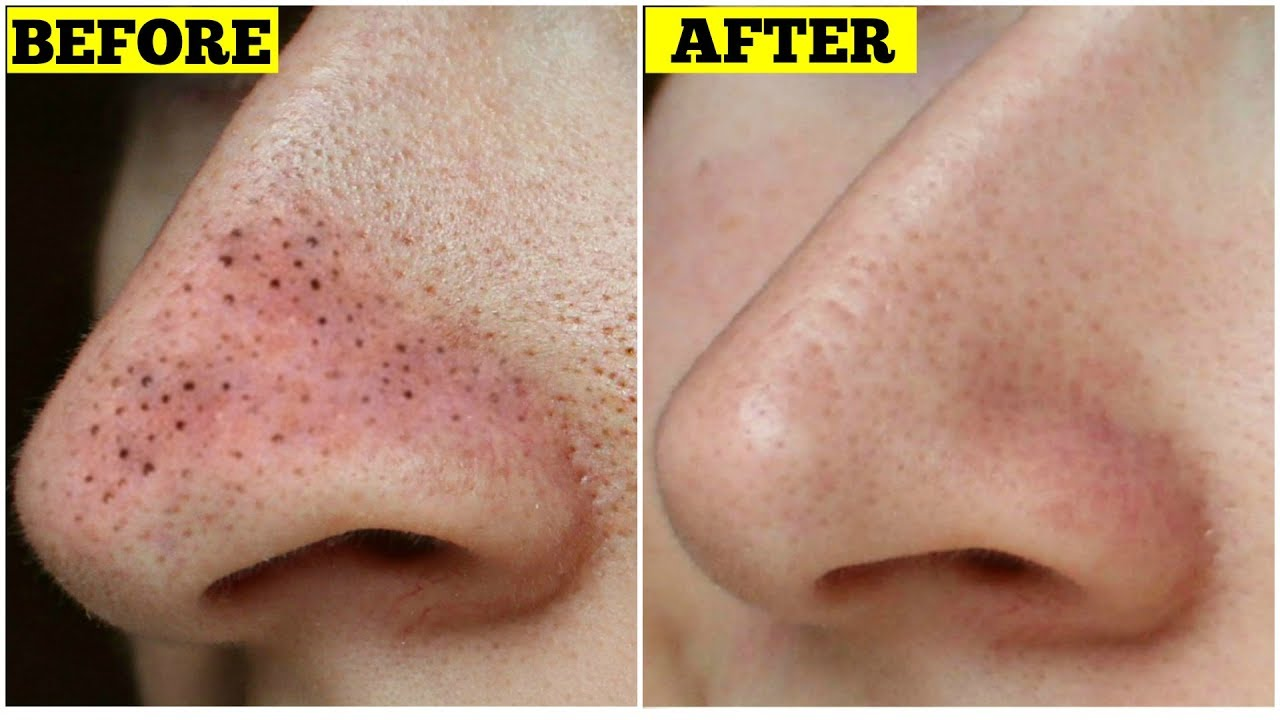 Get Rid Of Blackheads Instantly | EASIEST & EFFECTIVE HOME REMEDY ...