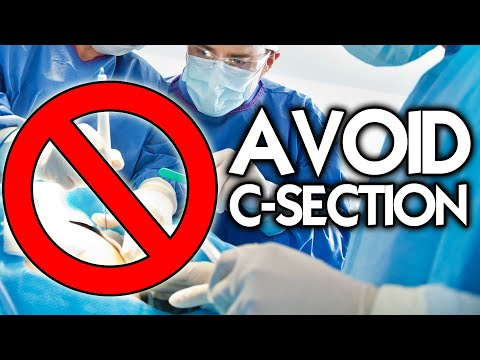Top 10 Tips to Avoid a C-Section   Midwife Secrets You Need to Know