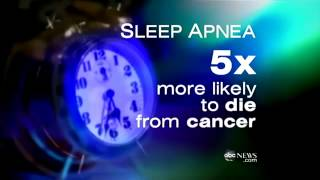Snoring, Sleep apnea Linked to CANCER  -  by - 1800CPAP.COM.mp4