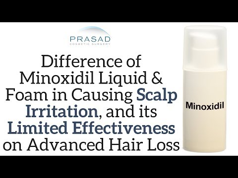 difference-of-minoxidil-liquid-and-foam-in-possible-irritation,-and-treating-advanced-hair-loss