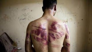 Tortury na Ludziach Film Dokumentalny Lektor PL Discovery