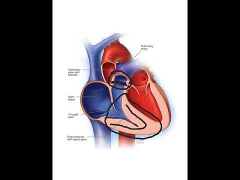 Pulmonary Stenosis - YouTube