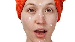 elocon cream for acne scars