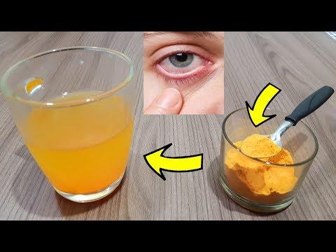MINHA NOSSA! Nunca Pensei Que AÇAFRÃO Poderia Fazer Isso Com A Visão, Glaucoma, Catarata E Miopia