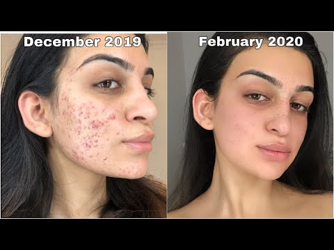 this-product-cleared-my-cystic-acne-in-60-days