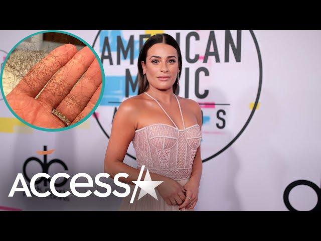 Lea Michele Struggling w/ Postpartum Hair Loss