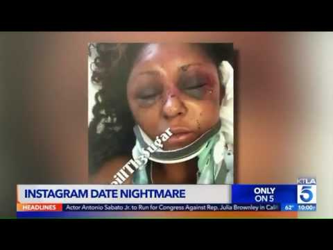 Horrible: Woman Shares Her Story Of Getting Beat Up During A Date With A Man She Met On Instagram!